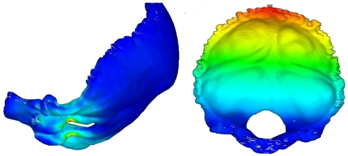Human skull meshing and analysis from scanned data (Courtesy: Royal College of Surgeons, Ireland)